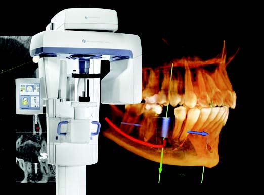 Instrumentarium op300 d – dental imaging unit | kavo kerr.