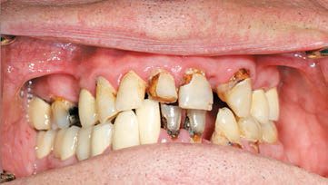 FIGURE 1. Older adult patient with severe root caries.