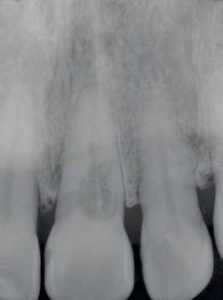 FIGURE 5A. This two-dimensional image of external resorption offers limited information to help clinicians understand the extent of the invasive process.