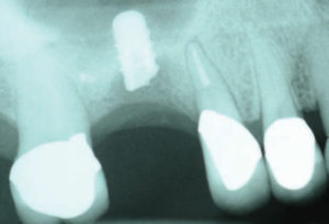 FIGURE 1. Fracture of this implant occurred in a patient who bruxes and refused to wear her night guard.