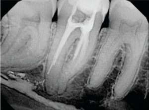 FIGURE 4. Poorly rendered therapy and a distal root perforation led to a devastating overfill in the mandibular canal.