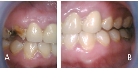 FIGURES 3A and 3B.Oral manifestations in the advanced stages of methamphetamine abuse include: (A) teeth broken off at the gingival margin; and (B) grayish-brown dentition with enamel that is reduced to a soft, leathery texture, along with gingivitis and acute periodontitis.