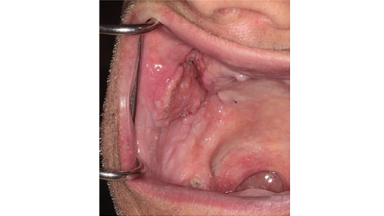 FIGURE 1. This clinical photo depicts squamous cell carcinoma of the buccal mucosa.