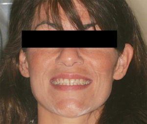 The patient in this case report presented with erosion and dentin exposure, which made her self-conscious about her smile.