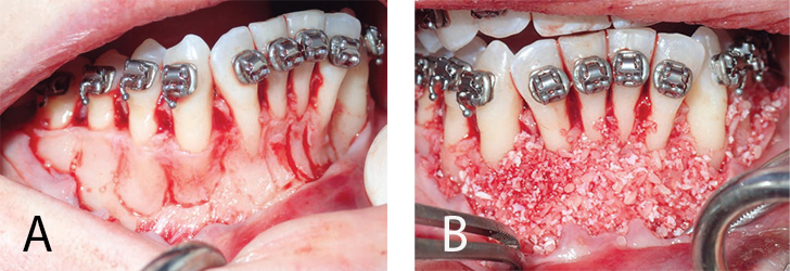 FIGURES 1A and 1B.This image depicts periodontally accelerated osteogenic orthodontic treatment.FIGURES 1A–1B COURTESY MICHEL FURTADO, BDS, MS, AND LEE SHELDON, DMD, PA