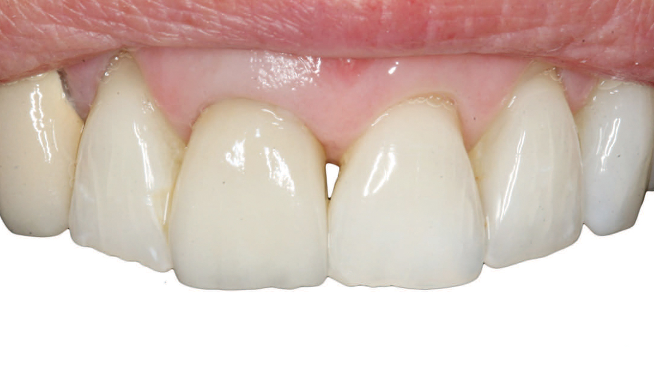 Selection Guidelines for All-Ceramic Restorations - Decisions in Dentistry