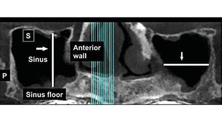 Impact of Septa During Bone Augmentation in the Maxillary