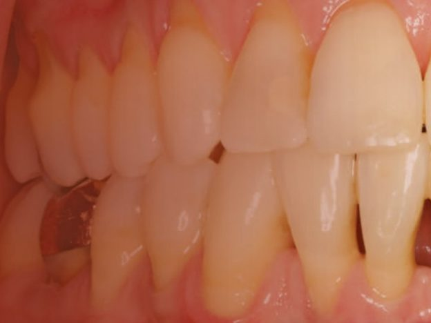 Diagnosis and Treatment of Gingival Recession course image