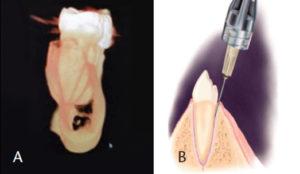 Inferior Alveolar Injection Approach