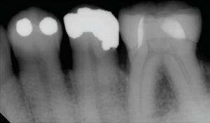 Digital Dentistry Radiographic