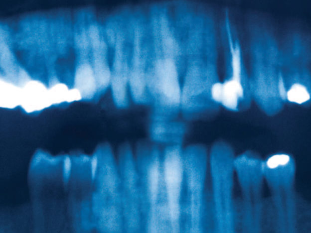 Five Misconceptions in Endodontics course image