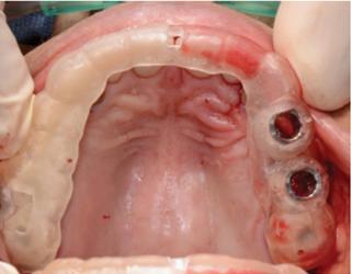 Surgical Guide Techniques for Dental Implant زراعة الأسنان باستخدام طابعة ثلاثي الأبعاد في تركيا.