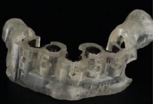 Digital Fabrication Implant