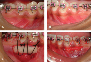 Free Gingival Graft Versus Modified Apically Repositioned Flap