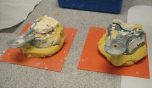 Orthodontic Practice Models