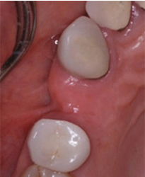 Preoperative occlusal view or nonpreserved ridge