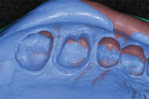 Gingival retraction final impression