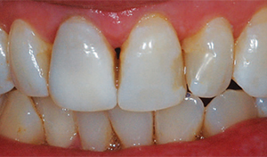 Discolored Dark tooth