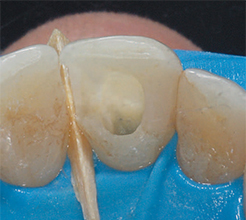 Clean dentin in chamber from dark tooth restoration