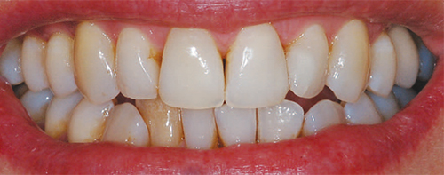 restoration after treatment for a dark tooth