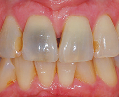 Stains on a dark tooth