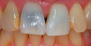 Outcome of dark tooth bleaching