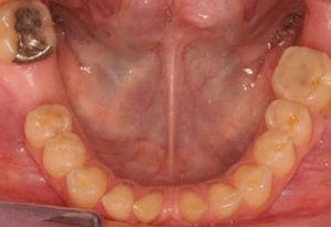 Mandibular pretreatment occlusal view prior to restorative treatment.