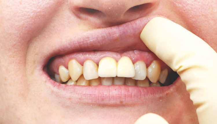 Treatment Planning Strategies For Dental Implant Procedures