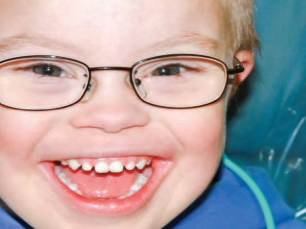 Caring for Children With Trisomy 21 In The Dental Setting course image