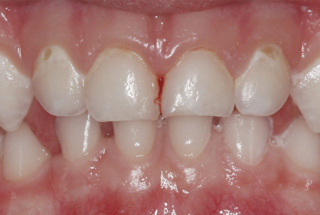 Behavior and Caries Management In Pediatric Dentistry course image