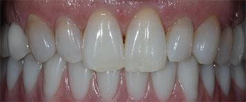 Maxillary and mandibular restorations.
