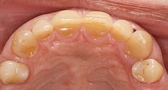 Maxillary occlusal view of teeth.