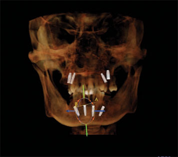 Radiograph used for implant planning