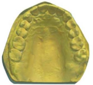 Maxillary cast