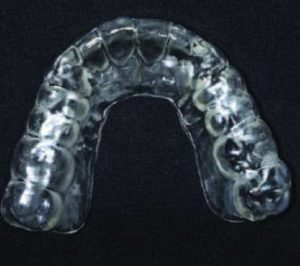 Occlusal view of the printed occlusal splint