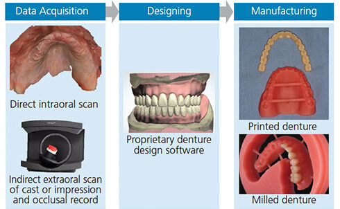 Digital dentistry scan