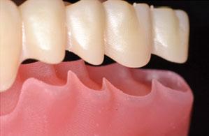 Printed denture teeth in the base sockets