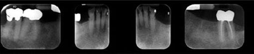 Radiograph of mandibular arch