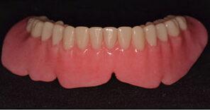Finished monolithic, milled, mandibular complete denture