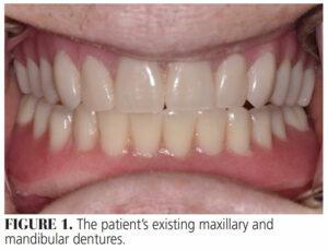 FIGURE 1. The patient's existing maxillary and mandibular dentures.