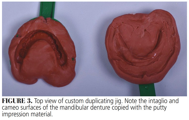 FIGURE 3. Top view of custom duplicating jig. Note the intaglio and cameo surfaces of the mandibular denture copied with the putty impression material.