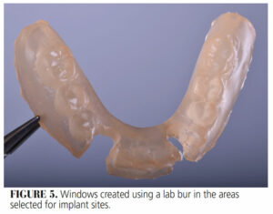 FIGURE 5. Windows created using a lab bur in the areas selected for implant sites.