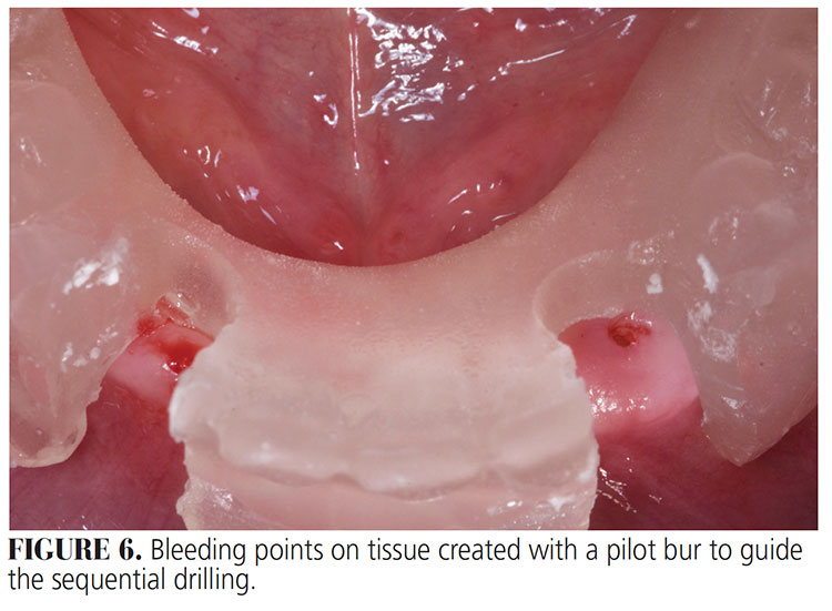 FIGURE 6. Bleeding points on tissue created with a pilot bur to guide the sequential drilling.