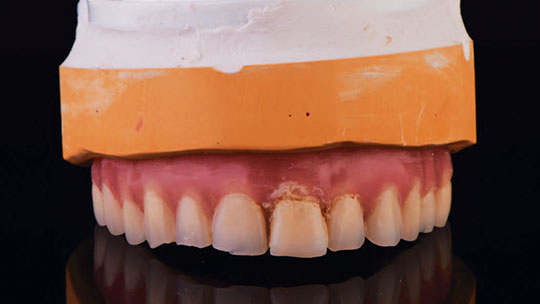 Master cast for dental implant