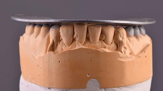 Cast of removable partial denture impression