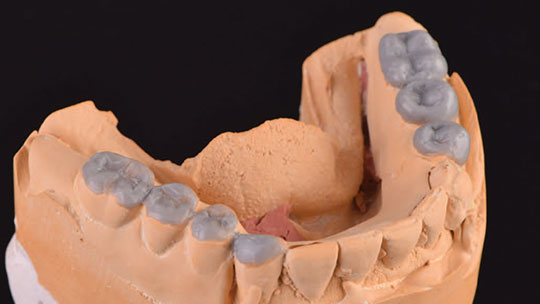 Wax up of dental implant