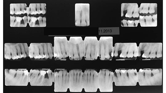 Full-mouth radiograph