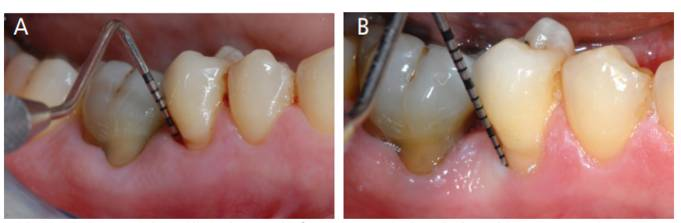 Clinical views before nonsurgical periodontal instrumentation