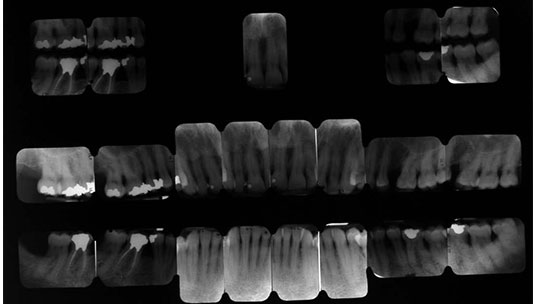 Radiographic series of full mouth