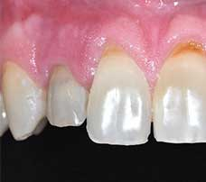One-week postoperative frontal view of implant-supported provisional crown